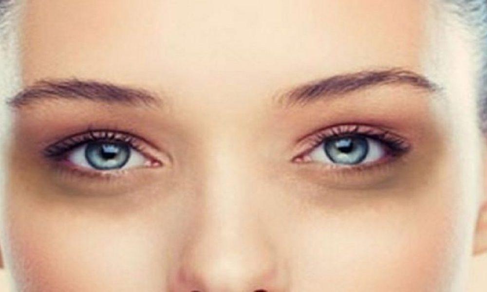 Les vaisseaux sanguins brisés provoquent des cernes sous les yeux